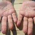 Почему кожа на пальцах морщится в воде?
